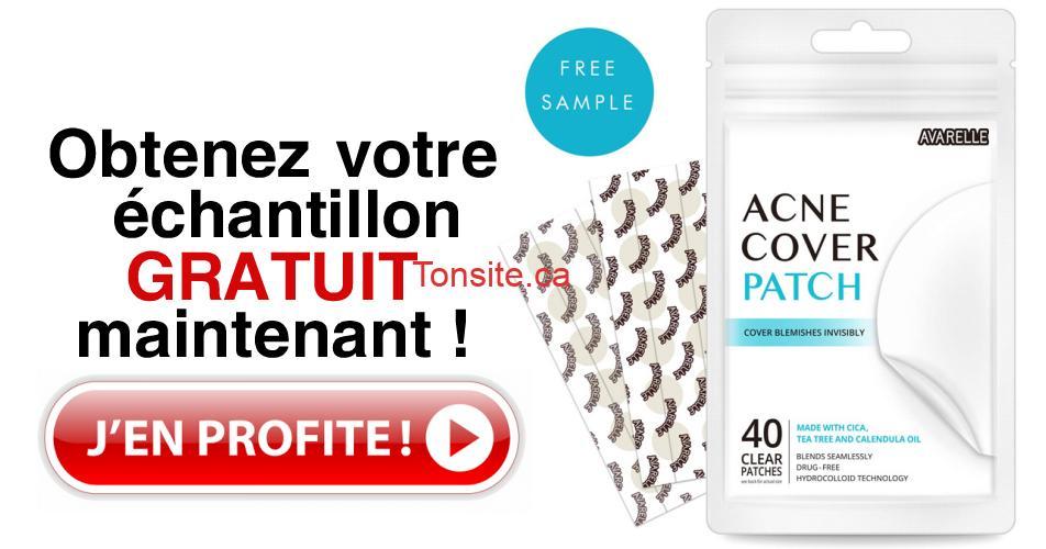 acne cover patch gratuit - Obtnez un échantillon gratuit de Acne Cover Patch